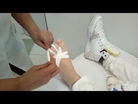 Doenças de pregos foto permanente e tratamento