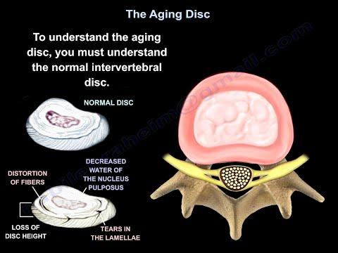 Starzejący się dysk międzykręgowy