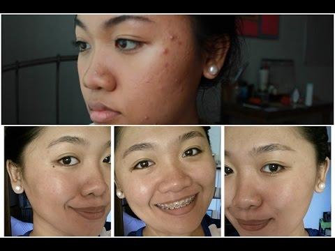 Brown spot hepatitis
