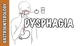 Dysphagia (difficulty swallowing) - causes, pathophysiology, classification, investigation