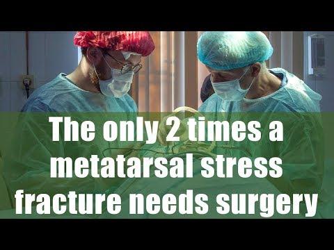 Articulațiile dureroase zdrobesc coloana vertebrală