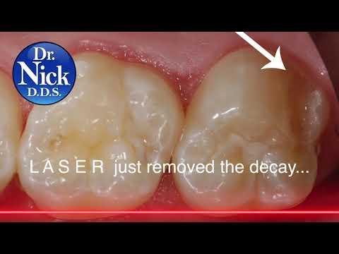 LASER white fillings - HOLISTIC dentistry ;)