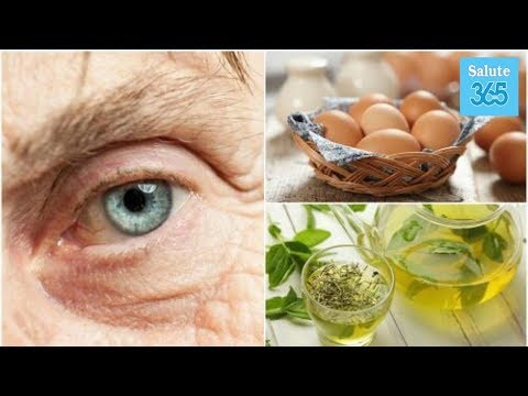 Cura di eczema varicosa da metodi nazionali