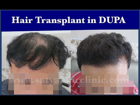 Hair Transplant Surgery: Diffused Pattern Alopecia | DUPA
