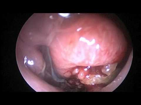 Esophageal papilloma treatment