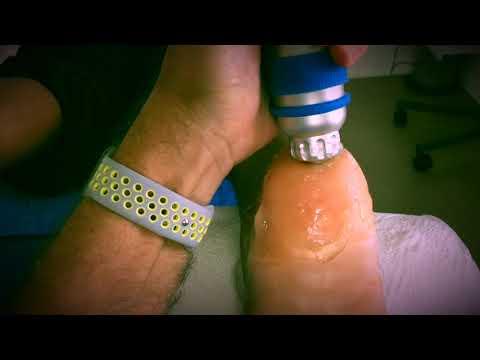 Taille Rückenschmerzen Behandlung