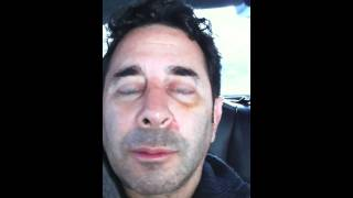 Dr. Paul Nassif Day 12 Recovery Rhinoplasty Journal, Part 2