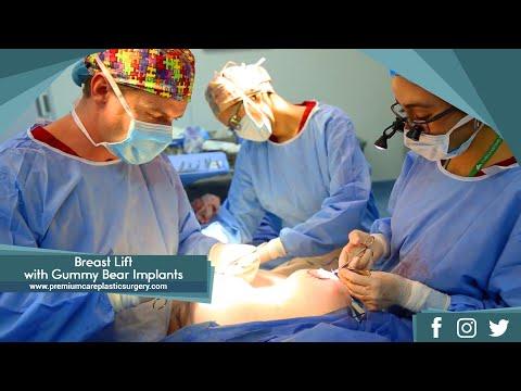 Kung paano dagdagan ang implants dibdib maliban