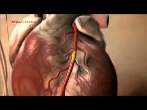 Lhypertension dans la glande thyroïde