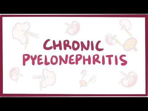 Pszichoszomatikus izom- és ízületi fájdalmak