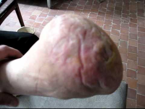 Болезни локтевых и коленных суставов