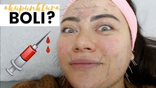 ZEBY BYC PIEKNA TRZEBA CIERPIEC?| Akupunktura kosmetyczna na zywo