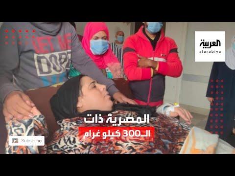 العرب اليوم - شاهد: قصة مصرية تضخم وزنها لـ 300 كيلو غرام