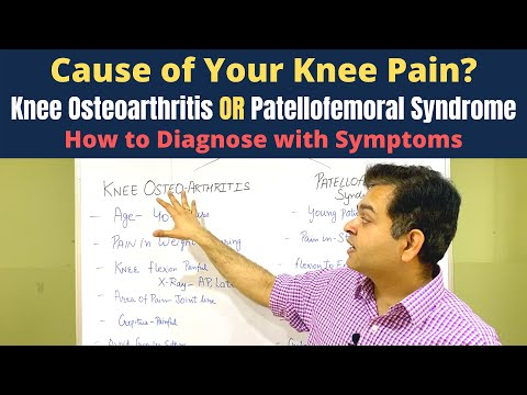 Ízületek külső fájdalomcsillapítói