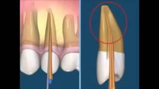 Как лечить гранулематозный периодонтит. Эндодонтия. Терапевтическая стоматология .