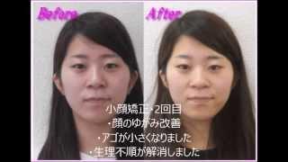 小顔矯正でアゴが小さくなって生理不順も解消/弘俊整体院クチコミ&ビフォーアフター