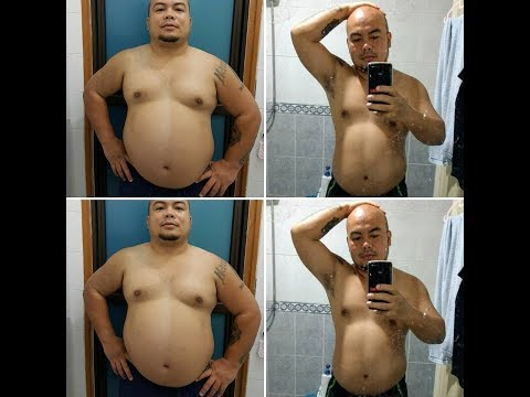 Mesotherapy cellulite kung paano mapupuksa