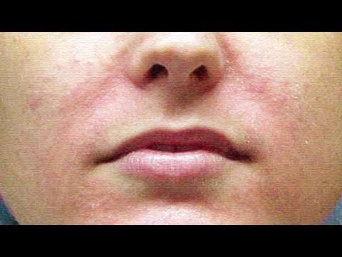 Омолаживающая маска для очень сухой, дряблой, морщинистой кожи.