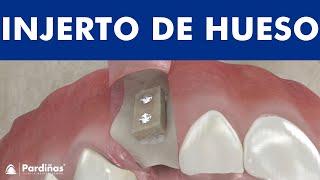 Injerto de hueso dental en bloque ©