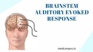 BAER (Brainstem Auditory Evoked Response) Test