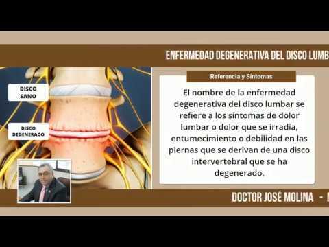 Ejercicio con osteoartritis de la articulación del hombro