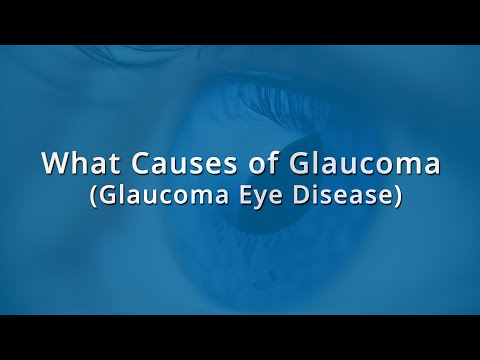 Video What Causes of Glaucoma | Glaucoma Eye Disease