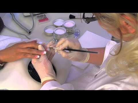 Au microorganisme végétal des ongles floukonazol