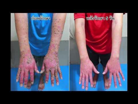 การรักษา creolin ของโรคสะเก็ดเงิน
