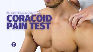 True Or Pseudo Frozen Shoulder? | Adhesive Capsulitis Diagnosis