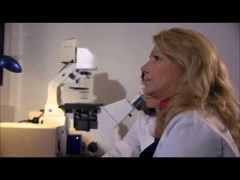 Virus del papiloma humano familia