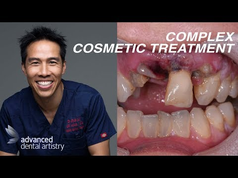 FIX ALL MY TEETH - Complex Smile Makeovers