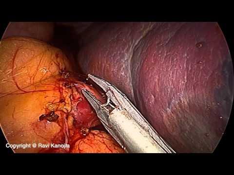Splenektomia laparoskopowa - postępowanie z szypułą naczyniową