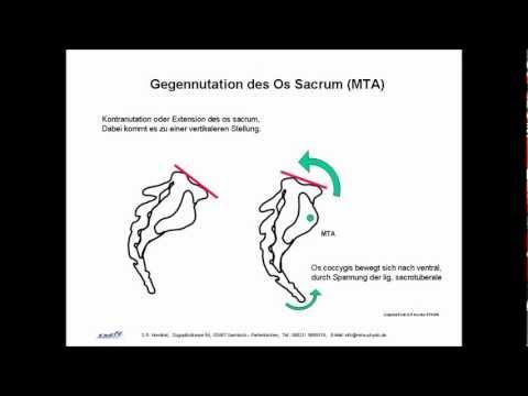 Osteochondrose der Halswirbelsäule und Dystonie