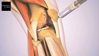 NEW-AGE SOLUTION FOR KNEE PAIN