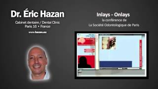 preview picture of video 'Inlays / Onlays - Présentation de la journée - Dr. Éric Hazan, Paris 16'