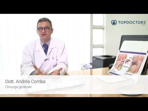 Tipi di vene varicose di trattamento chirurgico
