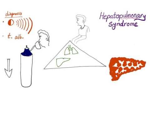 Code de la maladie de la CIM-10 hypertension