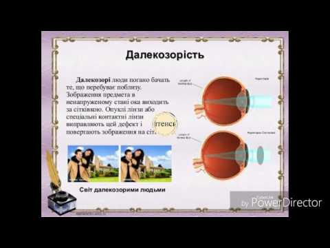 Ухудшение зрения после лазерной коррекции что делать