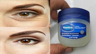 How to remove wrinkles under eyes naturally with Vaseline | Bags under the eyes, Reduce wrinkles