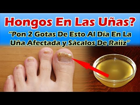 Como se librará del hongo de las uñas