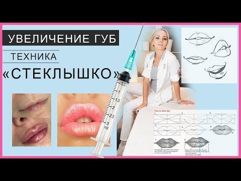 """Техника Увеличение губ """"СТЕКЛЫШКО"""" / работает ученица на моем курсе Контурная пластика"""