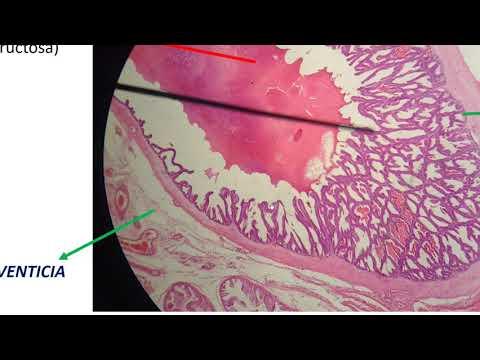 Los niveles de testosterona y la prostatitis crónica