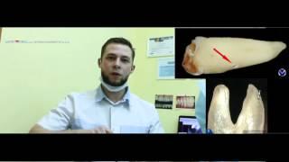 культевые вкладки , восстановление зубов вкладками , коронка на зуб . Мистердент Фрязино