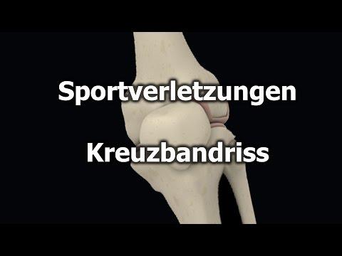 Preise für MRI des Knies Odessa
