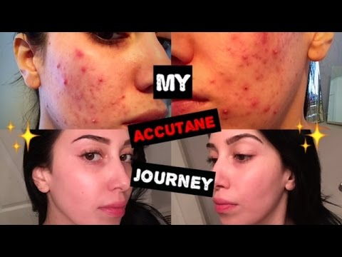 Video My Accutane Journey | 6 Months in 5 Minutes