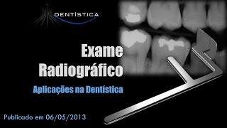 Exame Radiográfico - Aplicações Em Dentística