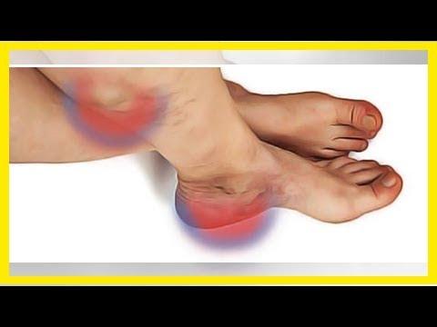 Les huiles des astérisques vasculeux sur les pieds