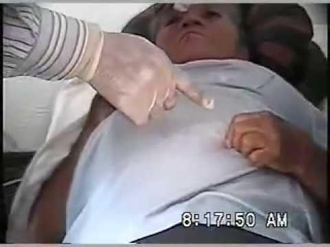 Cómo elevar la presión sanguínea de todas las formas