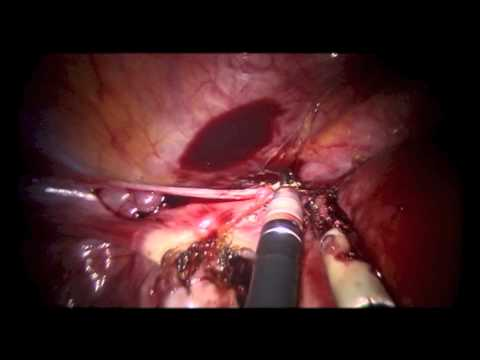 Robotic Single-Site Hysterectomy