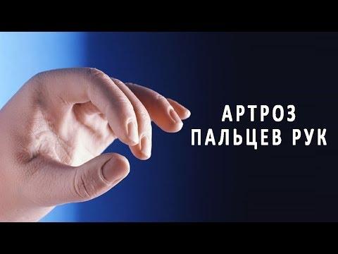 Что нужно знать об артрозе пальцев рук